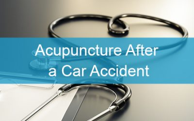 Acupuncture After A Car Accident Injury